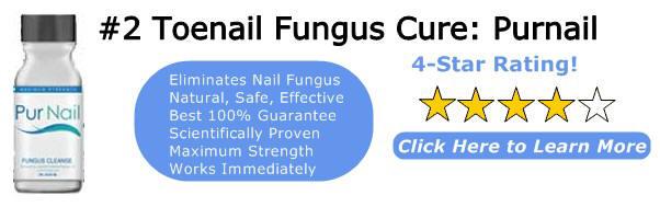 La exfoliación de las uñas en los pies no el hongo