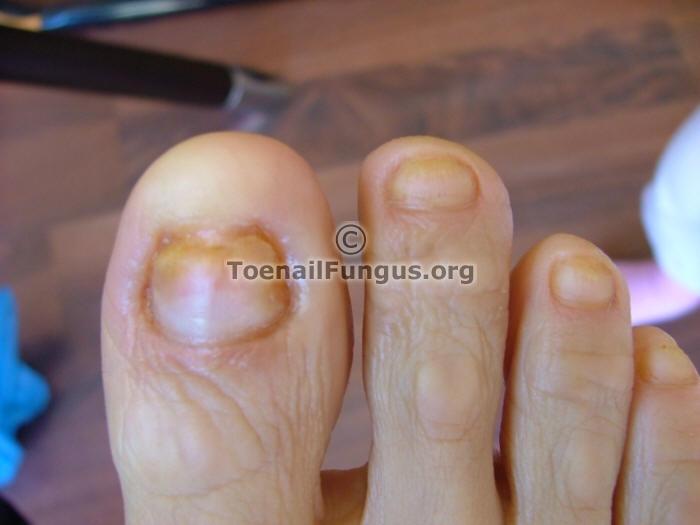 Fotos de hongos u as de los pies fotos enviar su mejor - Lejia para los hongos ...