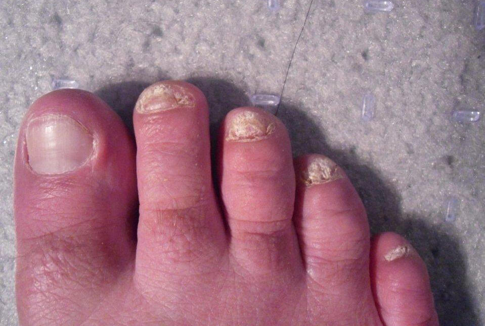 Toenail Fungus Photos – send in your *best* shot! – Toenail Fungus