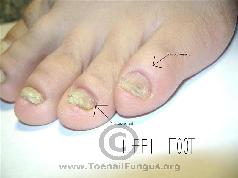 how to draw infection out of a toe