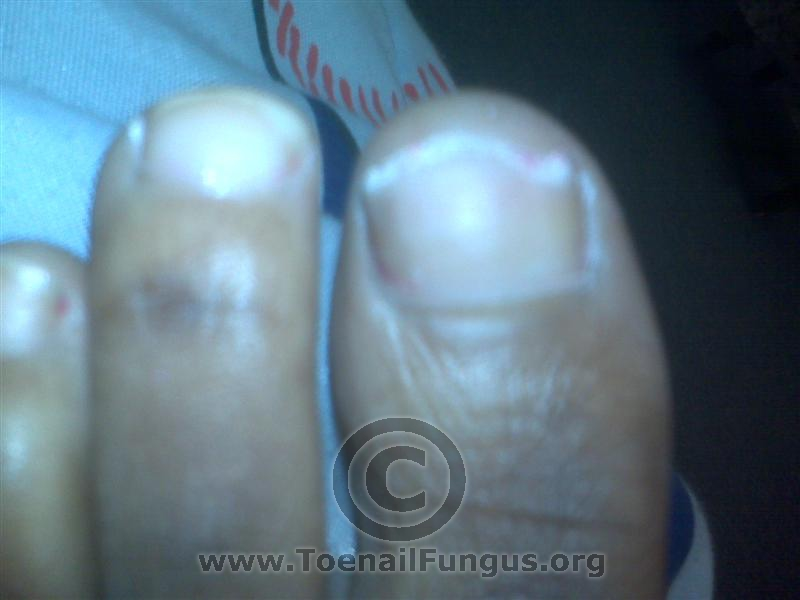 Toenail Fungus Pictures added by viewers! – Toenail Fungus