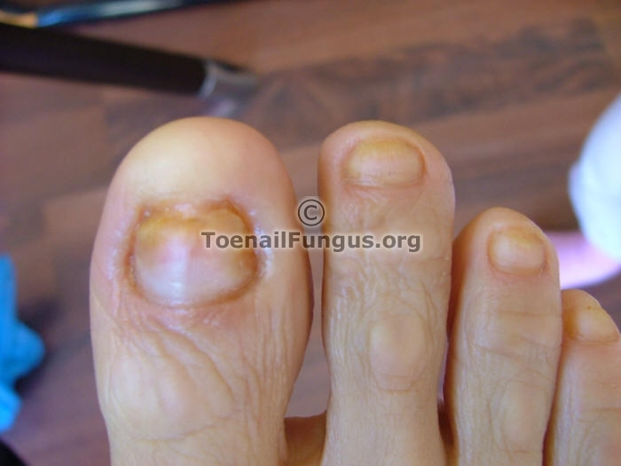 Pictures and Photos sent in by readers – Toenail Fungus
