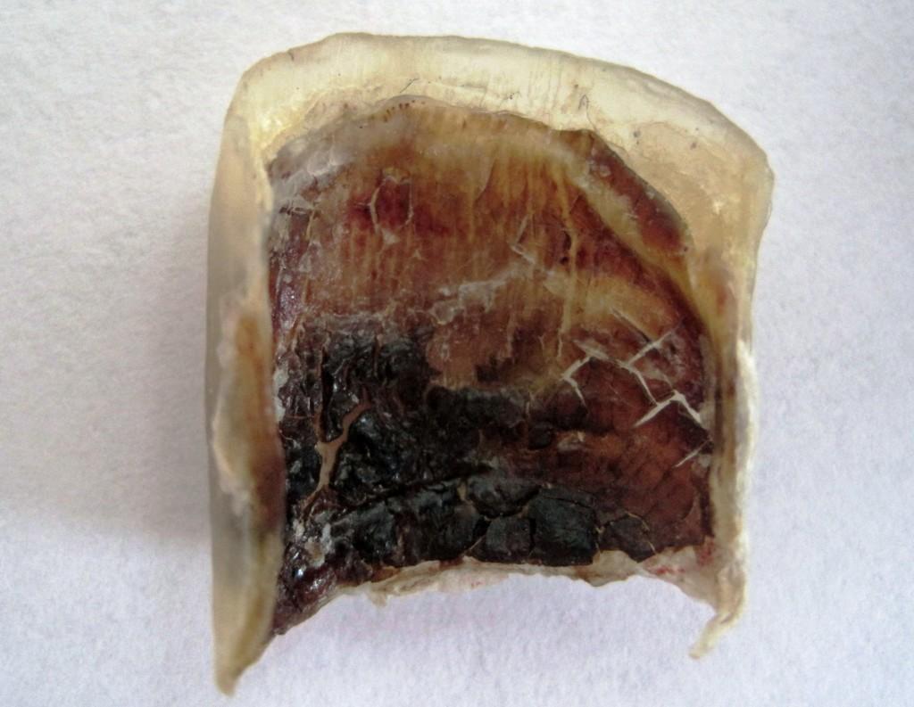 Detached Big Toenail Toenail Fungus